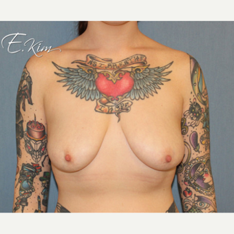 25-34 year old woman treated with Breast Lift with Implants before 3663435