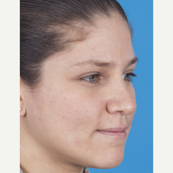 25-34 year old woman treated with Rhinoplasty before 3159497