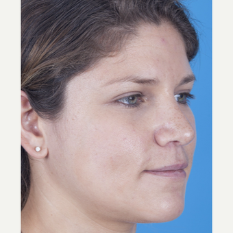 25-34 year old woman treated with Rhinoplasty after 3159497