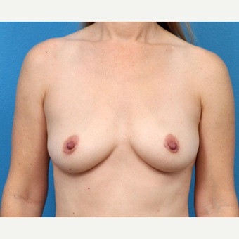 45-54 year old woman treated with Breast Implant Removal after 3219037