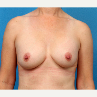 45-54 year old woman treated with Breast Implant Removal before 3219037