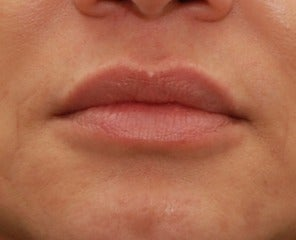 45-54 year old woman treated with Lip Augmentation after 3032136