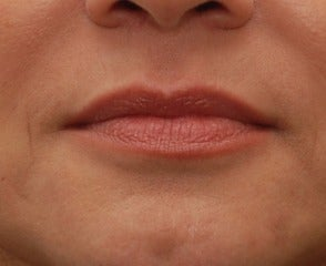 45-54 year old woman treated with Lip Augmentation before 3032136