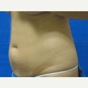 45-54 year old woman treated with Liposuction before 3163075