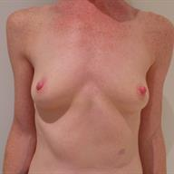 35-44 year old woman treated with Breast Implants before 3721206