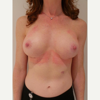 35-44 year old woman treated with Breast Implants after 3721206
