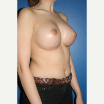 25-34 year old woman treated with Breast Augmentation after 3788586
