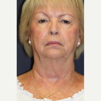 72 year old woman treated with Neck Lift before 3528422