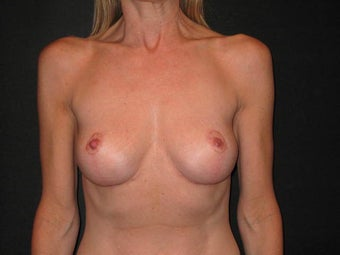 Breast Implant Removal with Mastopexies after 817158