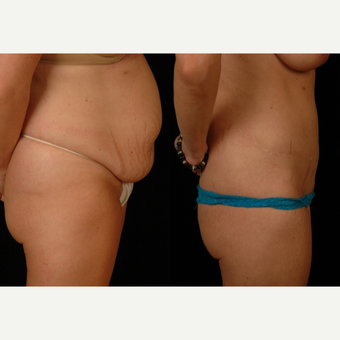35 year old woman treated with Tummy Tuck and Liposuction to Flanks after 3482691