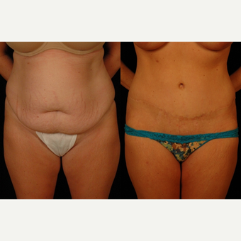35 year old woman treated with Tummy Tuck and Liposuction to Flanks before 3482691