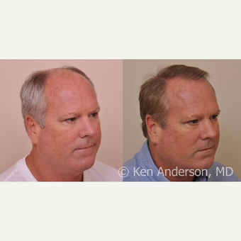 50 year old - Hair Transplant - 6 months progress photos - MORE HAIR to come in the next 6-9 months after 3027846