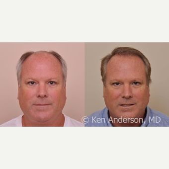 50 year old - Hair Transplant - 6 months progress photos - MORE HAIR to come in the next 6-9 months before 3027846