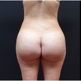 25-34 year old woman treated with Tumescent Liposuction after 3629909
