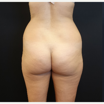 25-34 year old woman treated with Tumescent Liposuction before 3629909
