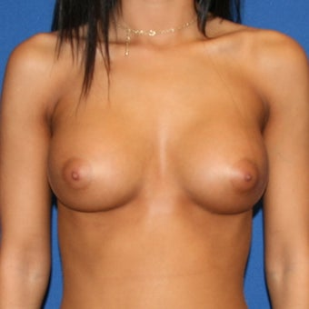 Mentor saline breast implants for breast augmentation after 1393358