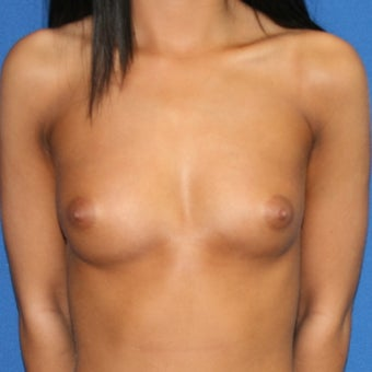 Mentor saline breast implants for breast augmentation before 1393358