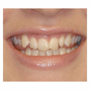 Crowded teeth treated with Clear Braces before 3696137
