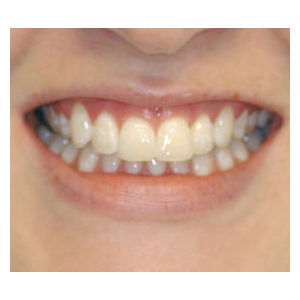 Crowded teeth treated with Clear Braces after 3696137