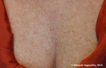 Sun Damage Treated with VBeam® Laser before 1709367