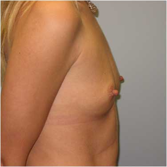 37 year old woman treated with Breast Augmentation before 3468352