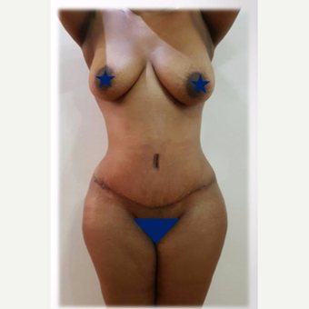 25-34 year old woman treated with Tummy Tuck after 3730806