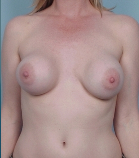 Breast Implant Revision before 110574