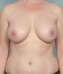 Breast Implant Revision after 110574