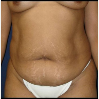 35-44 year old woman treated with Tummy Tuck before 3414911