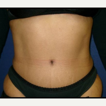 35-44 year old woman treated with Tummy Tuck after 3414911
