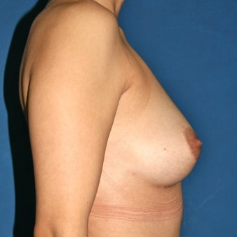 Natural Breast Augmentation through Fat Transfer surgery after 988368