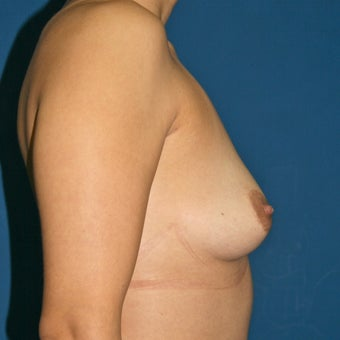 Natural Breast Augmentation through Fat Transfer surgery before 988368