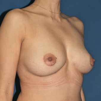 Natural Breast Augmentation through Fat Transfer surgery 988368