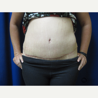 25-34 year old woman treated with Panniculectomy after 2851142