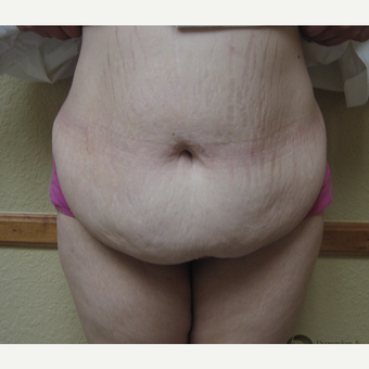25-34 year old woman treated with Panniculectomy before 2851142