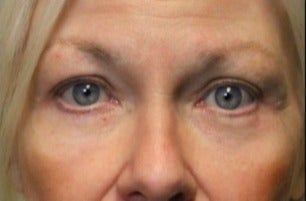 55-64 year old woman treated with Laser Resurfacing after 3046891
