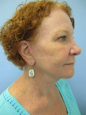 Face skin rejuvenation, woman, spot removal after 851412