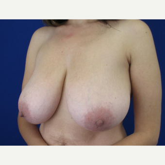 25-34 year old woman treated with Breast Reduction before 3459742