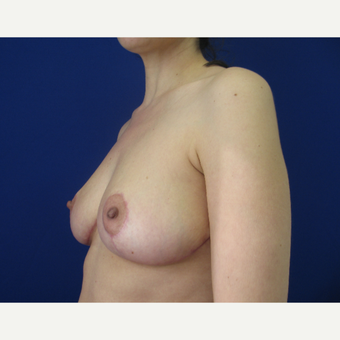 25-34 year old woman treated with Breast Reduction after 3459742