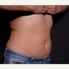 55-64 year old woman treated with SculpSure after 3584203