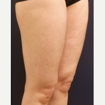 35-44 year old woman treated with Cellulaze after 3142616