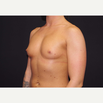 25-34 year old woman treated with Breast Implants before 3440971