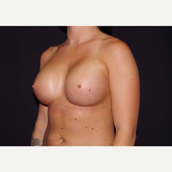 25-34 year old woman treated with Breast Implants after 3440971