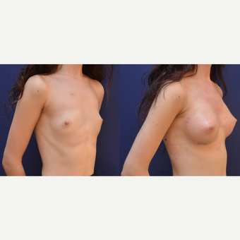 18-24 year old woman treated with Breast Augmentation before 3238841