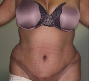 25-34 year old woman treated with Tummy Tuck after 3647126