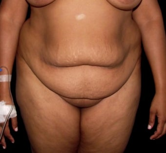25-34 year old woman treated with Tummy Tuck before 3647126