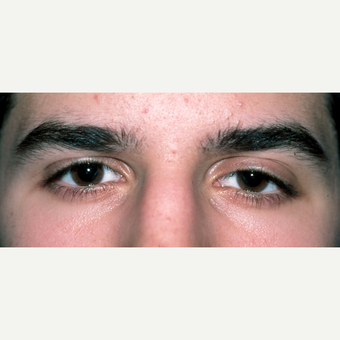 Congenital ptosis treated in early adulthood for young male before 2826106