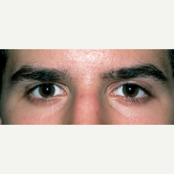 Congenital ptosis treated in early adulthood for young male after 2826106