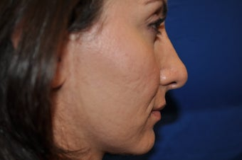 Female Patient Received Rhinoplasty to Remove Bump on Nasal Bridge after 892836