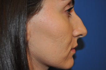 Female Patient Received Rhinoplasty to Remove Bump on Nasal Bridge before 892836